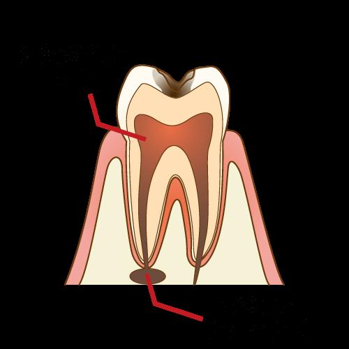 根管治療の初期症状