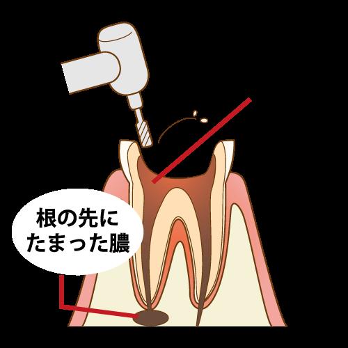 根管治療の為に咬合面(や補綴物)を削ります。